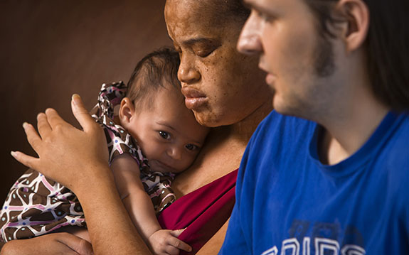 Erika Johnson, center, and Blake Sinnett, right, of Kansas City, Missouri, both of whom are legally blind, welcomed home their two-month-old baby, Mikaela Sinnett, July 20, 2010, after having Mikaela taken away from them by a protective custody ruling because both parents are blind. After challenging the ruling of protective custody, Mikaela was returned to her parents after 57 days in foster care. (David Eulitt/Kansas City Star/MCT)