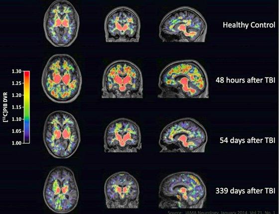 traumatic-brain-injury-hidden-epidemic-tbi