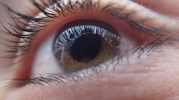 glaucoma eye