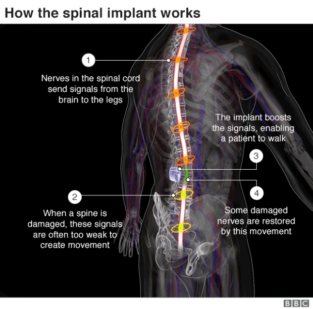 spinal implant